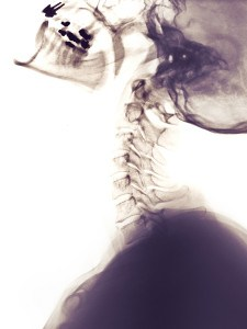 cervical spine x-ray showing whiplash